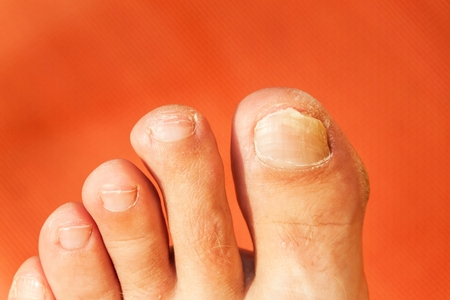callus: Flies on your fingers. Close up shot of a bad nail finger. Nail on the foot - pedicure