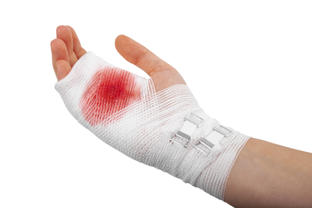 Injured hand of a girl wearing a white bandage