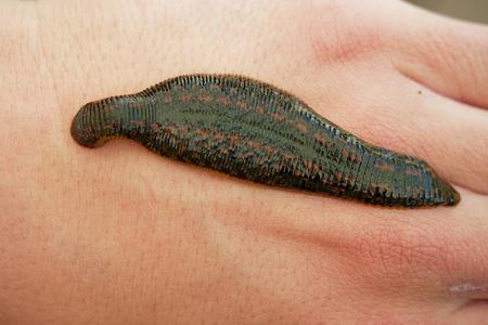 Medicinal Leech - Hirudo medicinalis - leech bite, leech is sucking blood on the human body (hand).