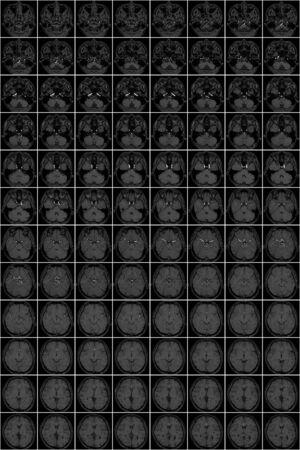 Miniatura della risonanza magnetica alla testa