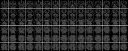 Miniatura della risonanza magnetica alla testa Archivio Fotografico