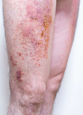 Severe eczema with pus (adult male leg)