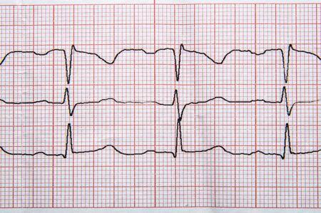 Investigación médica. Fragmento de un electrocardiograma normal con elementos de arritmia.