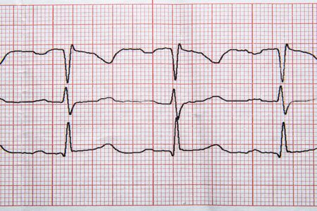 Medical research. Fragment of a normal electrocardiogram with arrhythmia elements.