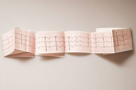 Medical research. ECG. The normal result of electrocardiography in a 3-year-old child. Zdjęcie Seryjne