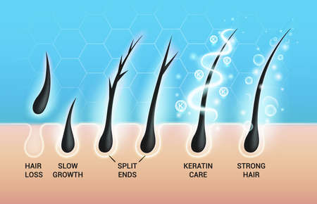 Different hair problems and deep salon treatment vector illustrations set, macro view of balding scalp skin and follicles. 版權商用圖片 - 155664688
