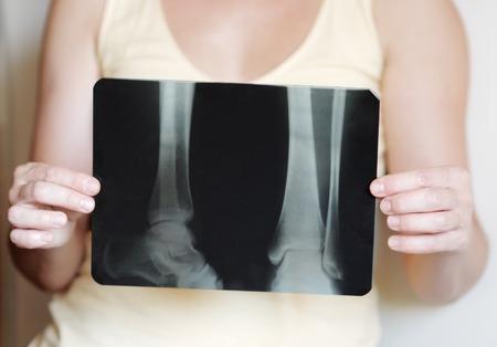 middle joint: Donna in possesso di un x-ray immagine di gambe Archivio Fotografico