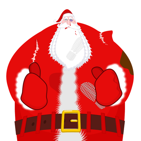 gift accident: Santa Claus beaten. Christmas fight. Broken glasses and black eye. Torn clothes. Bruises and abrasions.