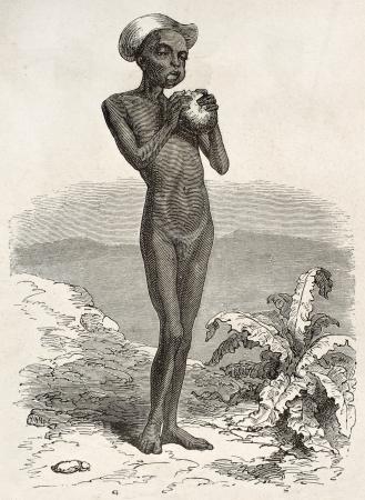 nackter junge: Unterernährten Jungen Kytchs Stammes-, Ost-Afrika. Erstellt von Neuville auf Le Tour du Monde, Paris, 1867