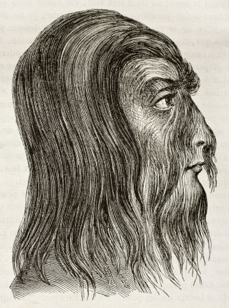 ancestry: Shwe-Maong  profile (Burmese hairy man). By unidentified author, published on Magasin Pittoresque, Paris, 1842