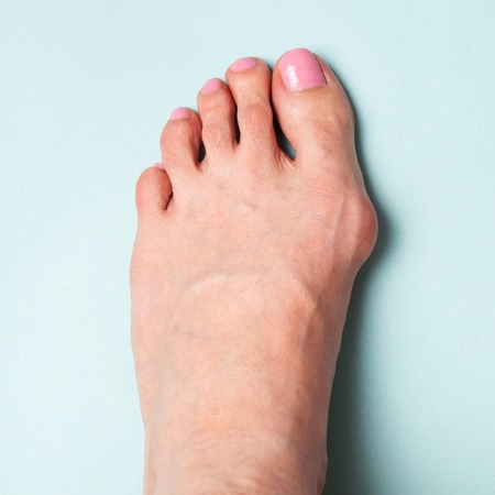 Bunion in foot. Valgus deformation from narrow shoes.