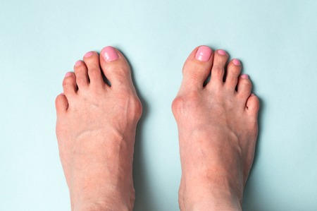Bone on the foot. Hallux valgus disease. Stock Photo