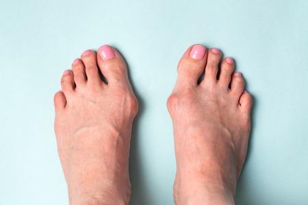 Bone on the foot. Hallux valgus disease. Standard-Bild