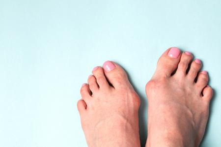 Valgus deformity. Flatfoot Orthopedic problem and disease