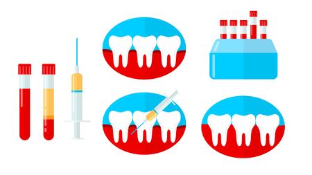 PRP set, platelet rich plasma in dentistry. Tooth, bleeding gum, syringe, centrifuge. Vector illustration in flat style Illustration