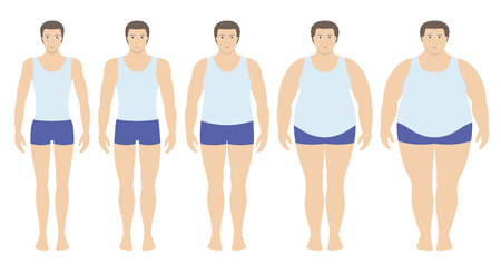 Body mass index vector illustration from underweight to extremely obese in flat style. Man with different obesity degrees. Male body with different weight. Stock Vector - 85997533