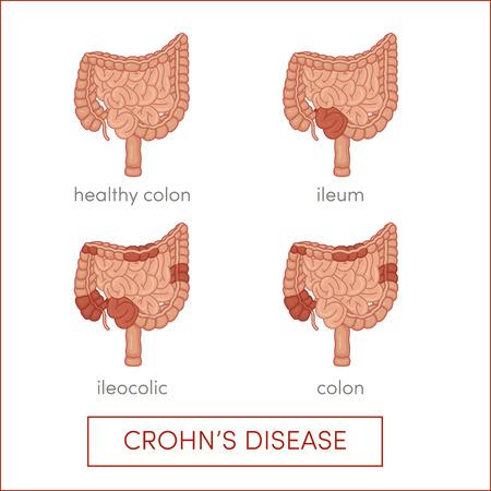 bowel disease: Crohns disease. Inflammatory bowel disease. Cartoon illustration for medical atlas or educational textbook.