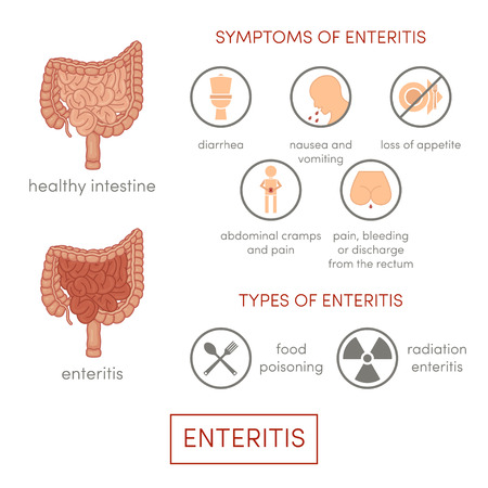 enteritis: Enteritis. Symptoms of enteritis. Cartoon illustration for medical atlas or educational textbook. Set for infographic