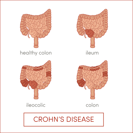 enteritis: Crohns disease. Inflammatory bowel disease. Cartoon illustration for medical atlas or educational textbook.