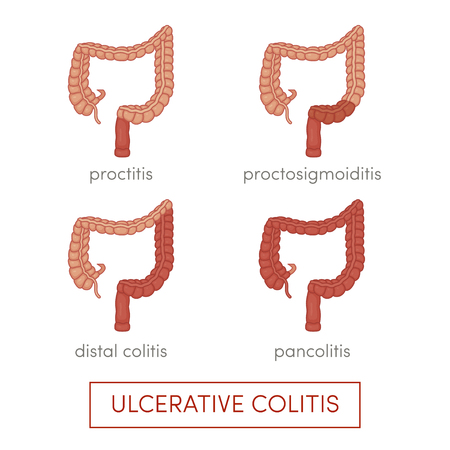 colitis: Types of ulcerative colitis. Cartoon illustration for medical atlas or educational textbook.