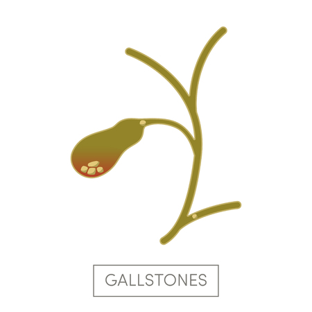 cystic duct: Cholelithiasis - gallstone disease. Gallbladder of a human filled with gallstones. Cartoon vector illustration for medical atlas or educational textbook.