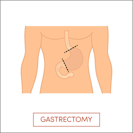 fundus of stomach: Total gastrectomy - full surgical removal of the stomach
