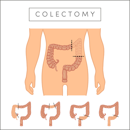 Colectomy - surgical removal of the colon's parts. Types of colectomy