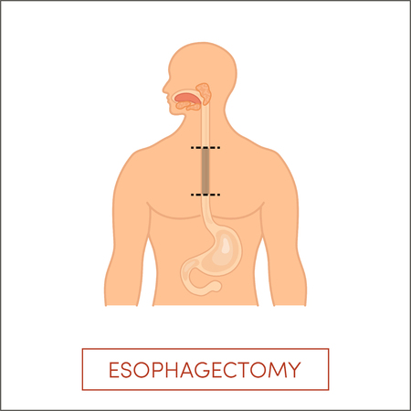 esophagus: Esophagectomy - partial excision of the esophagus. illustration for medical books.