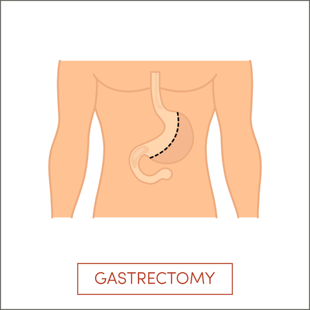 fundus of stomach: Vertical gastrectomy - a partial surgical removal of the stomach. illustration for medical books.