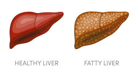 Fatty liver disease. Vector illustration of a healthy and a fatty liver in cartoon style