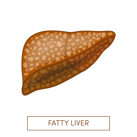 Fatty liver disease. Vector illustration of a fatty liver in cartoon style