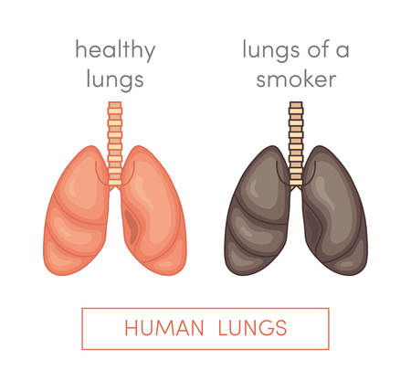 abnormalities: Healthy lungs and smokers lungs. Simple vector illustration in cartoon style. Illustration