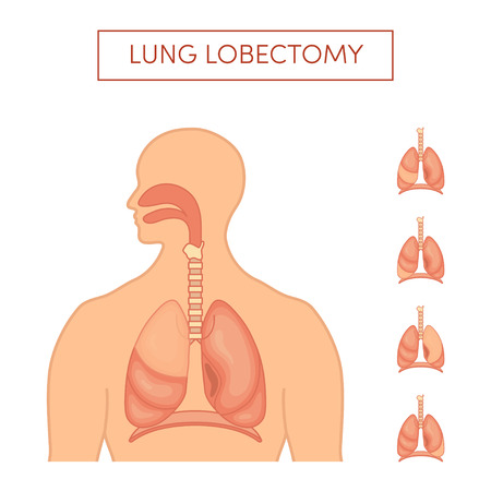 Lung lobectomy - surgical removal of the lobes of the lungs. Set with different lobes needed to be deleted. Simple vector illustration in cartoon style.