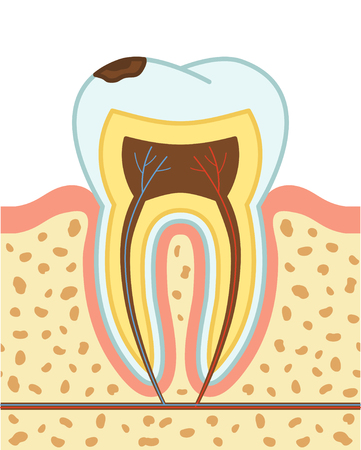 cementum: Tooth decay. First stage - enamel decay. Vector illustration