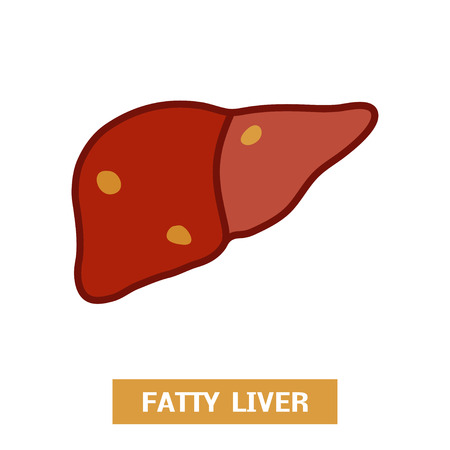 Fatty liver disease. Vector illustration of a fatty liver in cartoon  flat style Illustration