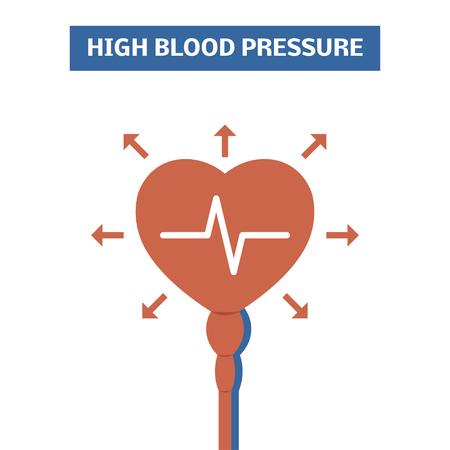 Hoge bloeddruk concept. Eenvoudige vector logo symboliseert hypertensie