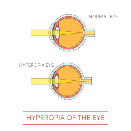 farsighted: Hyperopia of the eye, vector illustration