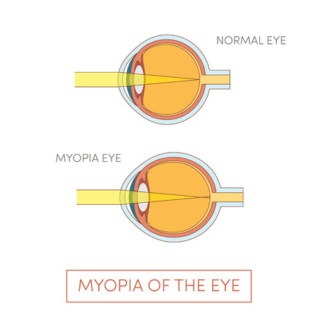 corrective lenses: Myopia of the eye, vector illustration
