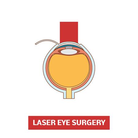 myopia: Laser eye surgery, vector illustration Illustration