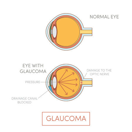 vision loss: Glaucoma eye, vector. Human eye disorder Illustration