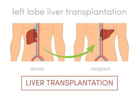 Living donor left lobe liver transplantation vector concept