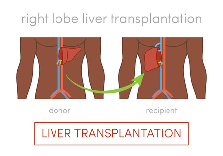 surgical removal: Living donor right lobe liver transplantation vector concept Illustration