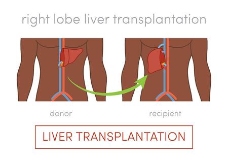 Living donor right lobe liver transplantation vector concept Illustration