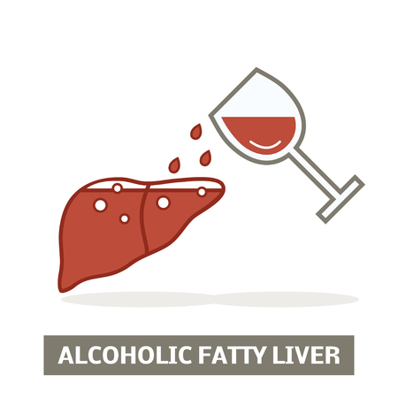 Alcoholic fatty liver concept Illustration