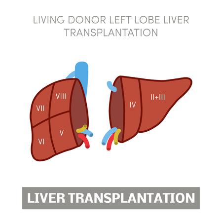 Trasplante De Hígado. Anatomía Segmentaria Del Hígado Y Suministro ...