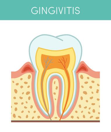 gingivitis: Tooth diseases: gingivitis, vector cartoon illustration