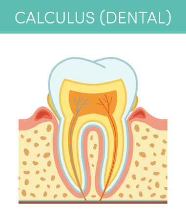 Tooth diseases: dental calculus. Vector cartoon illustration of molar affected by tartar