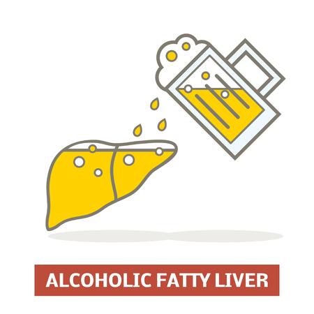 Alcoholic fatty liver concept 向量圖像