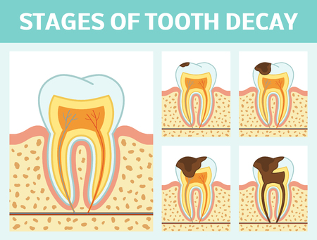 dentin: Vector illustration of tooth decay. Four stages of dental caries.