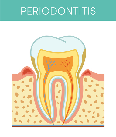 ulcerative: Tooth diseases: periodontitis, vector cartoon illustration